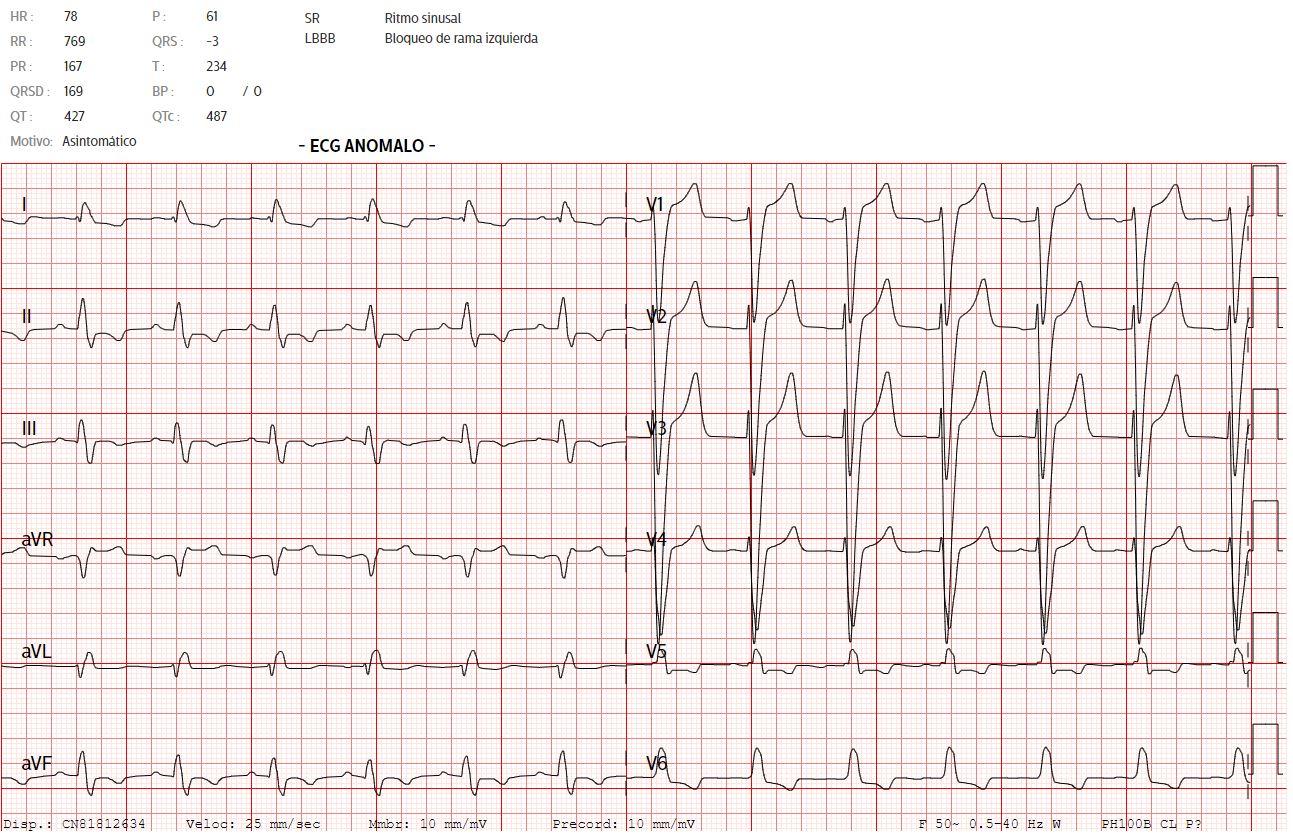 Electrocardiograma - RADELEC
